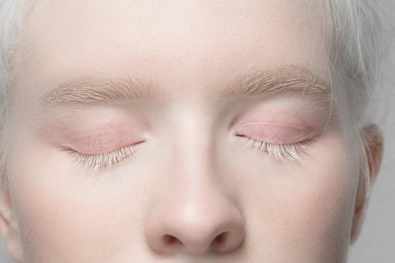 Giornata_albinismo_superstizione_discriminazione_UniSR (2)