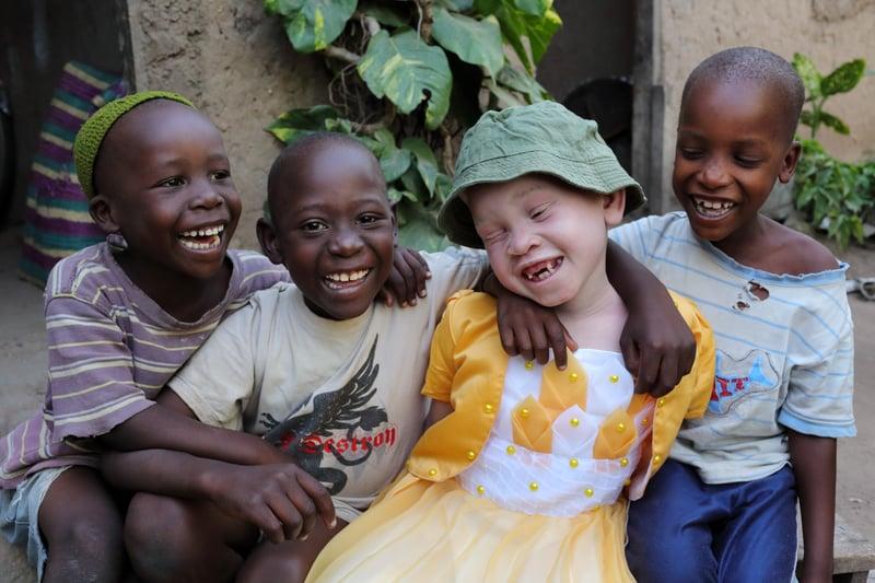 Giornata_albinismo_superstizione_discriminazione_UniSR (4)