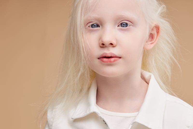 Giornata_albinismo_superstizione_discriminazione_UniSR (8)