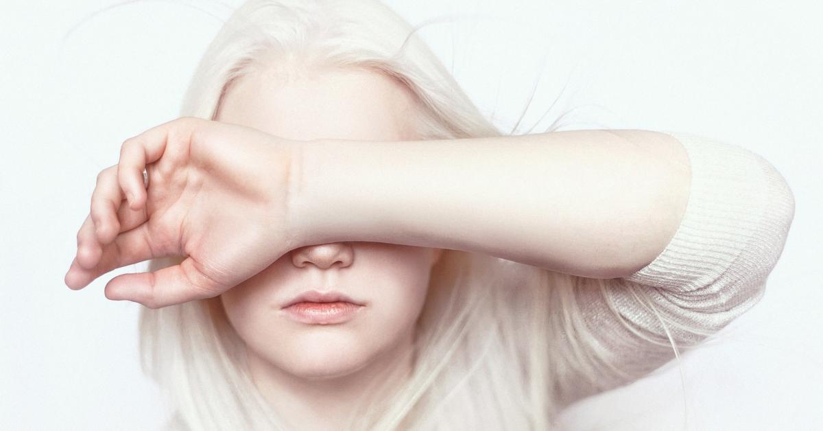 Giornata dell'albinismo, contro superstizione e discriminazione
